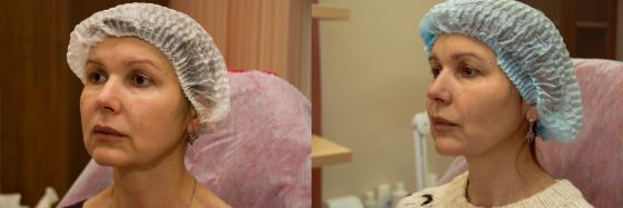 3-d modelirovanie lica za 1 chas do2